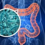 Probióticos y productos para colon irritable